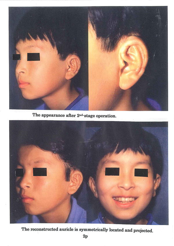 Concha type microtia with a large conchal vault