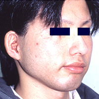 Post-operative appearance with Nagata method