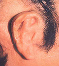 Secondary Auricular Reconstruction #6